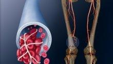 тромбоз глубоких вен может быть связан с низким уровнем витамина D